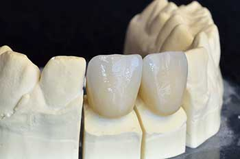 Dental Crowns in Streamwood
