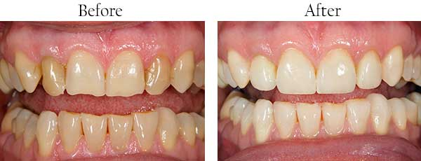 Before and After Invisalign in Streamwood