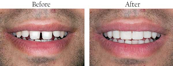 Before and After Dental Implants in Streamwood