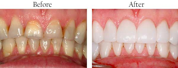 Streamwood Before and After Dental Implants