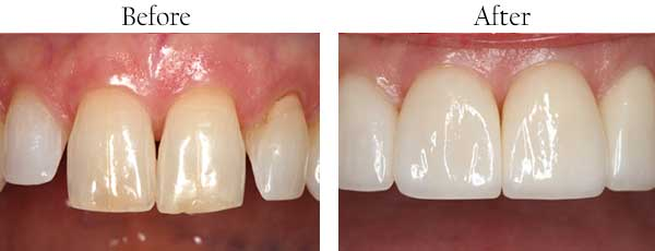 Streamwood Before and After Dental Bleaching
