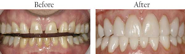Before and After Dental Bleaching in Streamwood